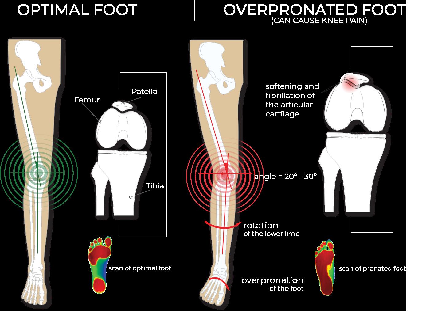 overpronation-knee-pain